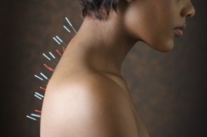 Acupuncture needles in African American woman's back