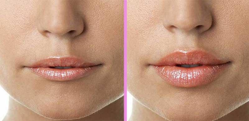 Коррекция формы губ: нюансы увеличения объема – Центр косметологии «Dетали»